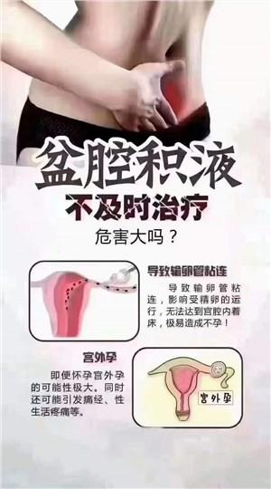 盆腔积液有什么危害?用什么牌子的妇科凝胶能好?