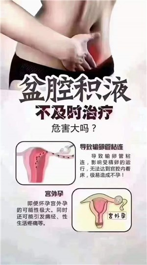 女性做私密保养可以预防妇科炎症吗?